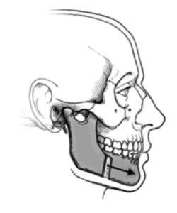 mandibular osteotomy / Osteotomie mandibulaire pour mâchoire inférieure reculée