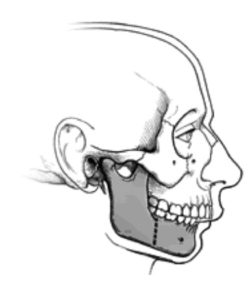 mandibular osteotomy