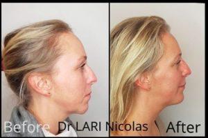 chirurgie de la mâchoire inférieure reculée